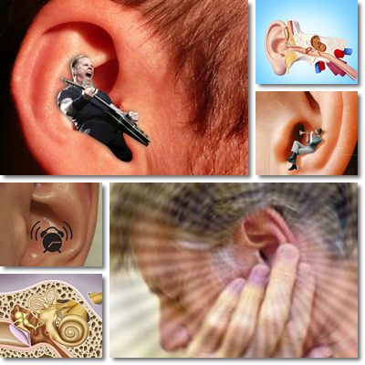 Tinnitus or Ringing Ears: Causes and Treatment