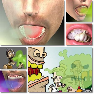 Bad Breath and White Tongue: Causes, Symptoms and Treatment