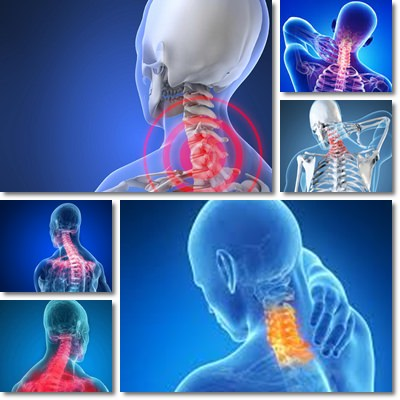 Neck Pain: Causes, Symptoms and Treatment