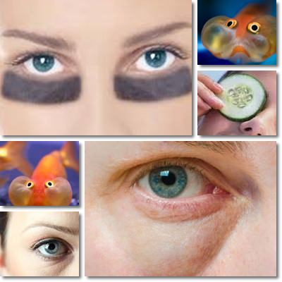 Puffy Eyes and Dark Circles: Causes and Remedies