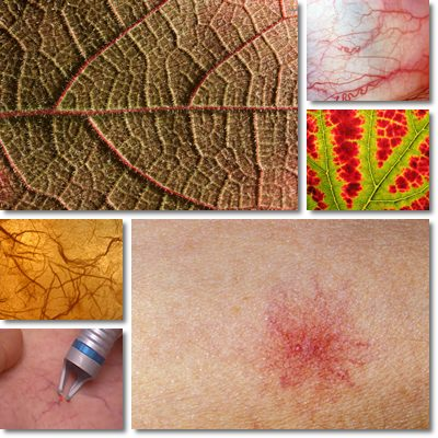 Spider Veins and Dilated Capillaries: Causes, Symptoms and Treatment