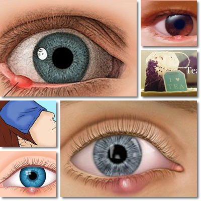 Styes: Causes, Symptoms and Treatment