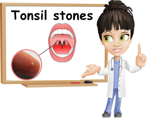 Tonsil Stone Removal Dentist