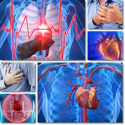 10 Tips to Prevent a Heart Attack
