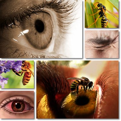 Stinging eyes causes