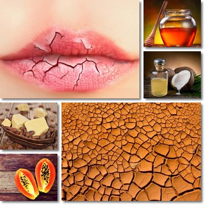 Chapped Lips: Causes, Symptoms and Remedies