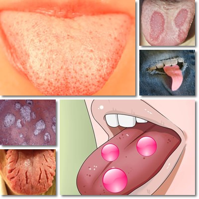 Spots on tongue