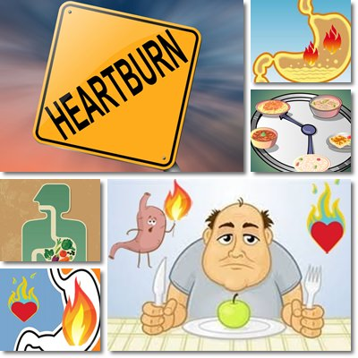 Heartburn: Causes, Symptoms and Treatment