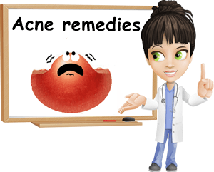 acne remedies