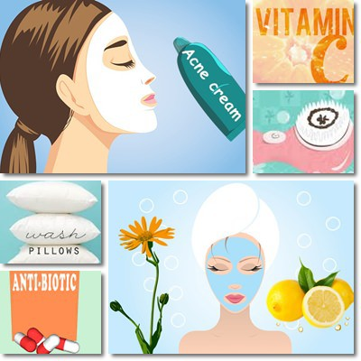 Acne: Remedies and Treatment