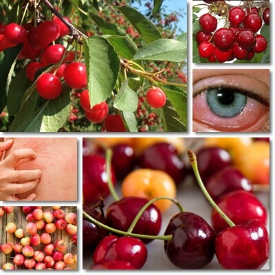 Cherry allergy