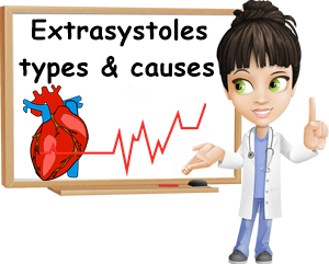 What are extrasystoles